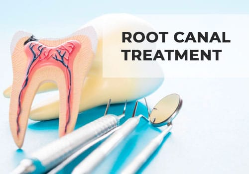 root-canal-treatment-istanbul